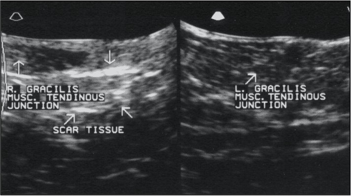 FIGURE (3) Ultrasound is another useful diagnostic tool. Pictured here are images from cases with gracilis injury. Note the hypoechoic regions on the left image typical of acute injury and the hyperechoic regions of scar tissue on the right image