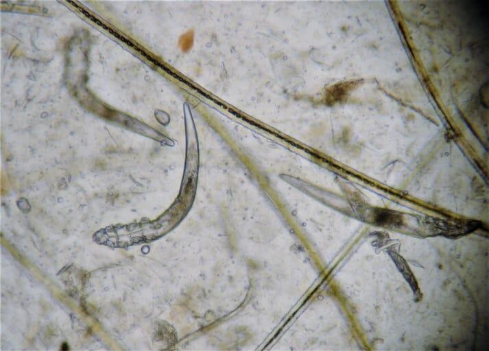 Microscopic view of Demodex injai