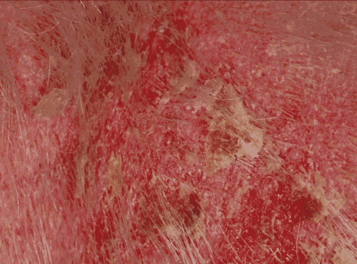 FIGURE 3 Severe crusting and pustular lesions of recurrent superficial pyoderma in a two-year-old West Highland White female dog. The underlying cause was generalised demodicosis, suggested by the extensive erythema and confirmed by tape stripping. Previous treatment consisted of glucocorticoids for suspected atopy, which had not been confirmed. Following resolution of the demodicosis, there was no recurrence of the pyoderma