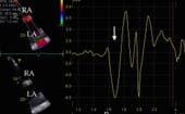 FIGURE (1) Colour tissue Doppler can be applied clinically to assess atrial function. A sample volume (yellow open circle) is placed on the tissue under interrogation, in this case the atrial septum, and the velocity trace is generated (right panel). The concurrent ECG allows events to be precisely timed (lower traces). The first image is from a horse converted from atrial fibrillation (AF) to sinus rhythm 48 hours prior; note that the A peak (arrow) indicating active atrial contraction is very small as mechanical function has not been restored although the rhythm is normal (A). The second is a similar image from a horse with no recent rhythm abnormality; note that the A peak is much larger (B). RA = right atrium, LA = left atrium, p = p wave, arrow = A peak associated with active atrial contraction thumbnail