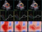 FIGURE (4) Speckle tracking echocardiography can be applied to short-axis images of the apical left ventricle to detect circumferential strain. This can be further sub-divided into strain within the endocardial, mid and epicardial zones. In this case with paroxysmal AF, notice that global strain (GS) is greater in all regions after normal sinus rhythm is restored (4B) Note that one of the regions in the septum (red and grey arrows) has not tracked properly