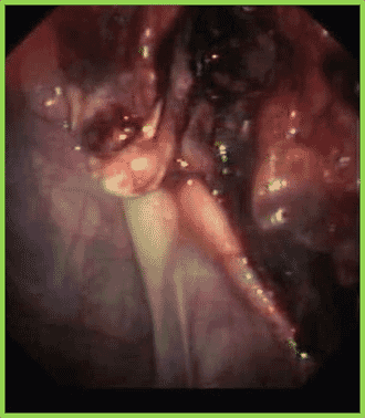 FIGURE (1) Endoscopic visualisation of a mycotic plaque over the roof of the guttural pouch and involving the internal carotid artery
