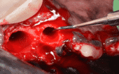 STEP 8: Curette sockets. Any infected granuloma tissue should be curetted out from the alveolar sockets. The alveolar margins should also be smoothed thumbnail