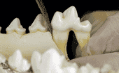 FIGURE (2A) A ramping force is when a wedge is inserted into the periodontal space, then vertical forces are applied to the tooth root thumbnail