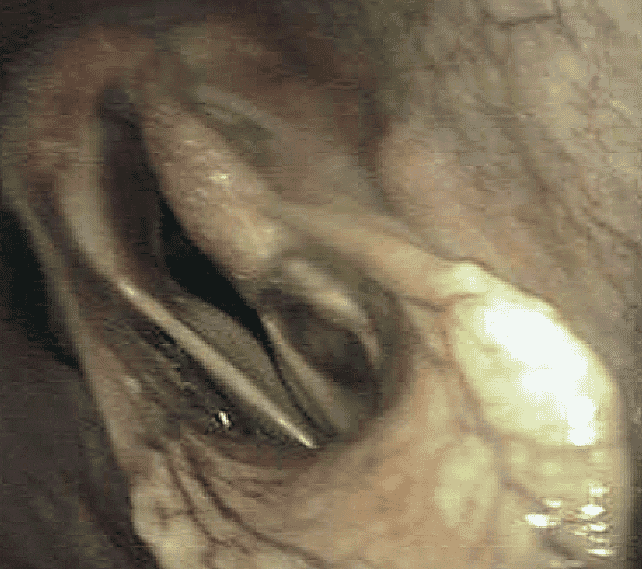 FIGURE (1) This snapshot endoscopic image of the larynx during ridden exercise shows left-sided grade 4 (total paralysis) recurrent laryngeal neuropathy and marked bilateral vocal fold collapse
