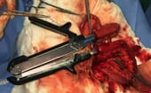 FIGURE (5) An enterectomy has been performed and Doyen bowel clamps used to occlude the lumen. Stay sutures are used to manipulate the cut ends of intestine and pull them onto the jaws of the dismantled linear cutting stapler device thumbnail