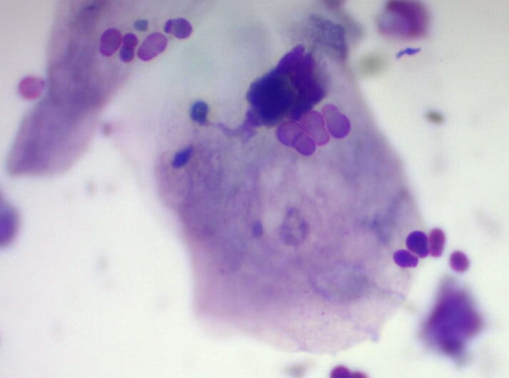 Microscopic view of Malassezia organisms