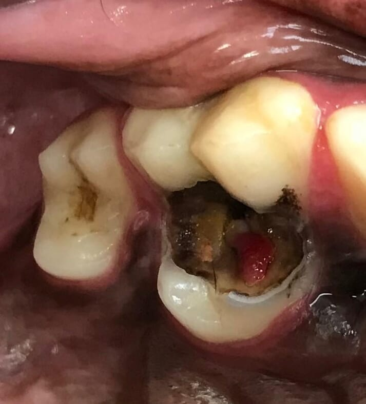 Dental Caries Lesions In Dogs Veterinary Practice
