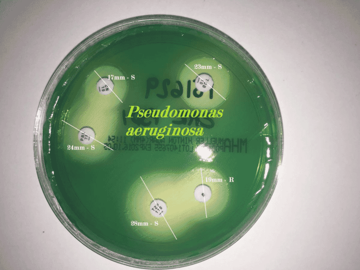 FIGURE 2 Only a limited panel of antibiotics can be tested for Pseudomonas aeruginosa, which has developed intrinsic resistance to multiple first-line antibiotics
