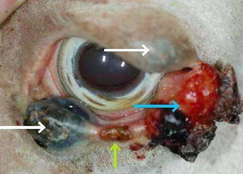 FIGURE (5) A highly complex mixture of tumours on the eyelids.