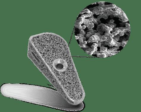 Fusion TTA implant